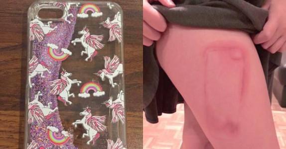 9-åringen sovnet med mobilen sin: Hun våknet med dette brennmerket på låret