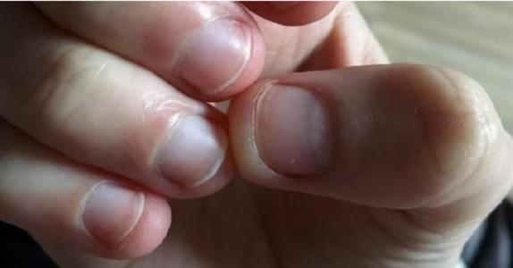Om du biter av huden rundt neglene MÅ du slutte. Her er hvorfor…