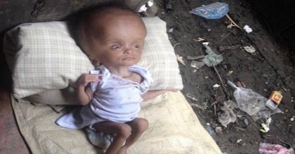 Kvinnen fant et sykt spedbarn blant søpla. Vent til du ser forvandlingen til babyen!
