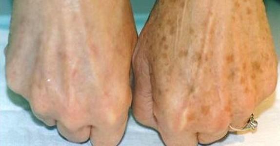 Hun hadde brune flekker på hendene, helt til hun tok de bort med DETTE! Jeg hadde ingen aning!