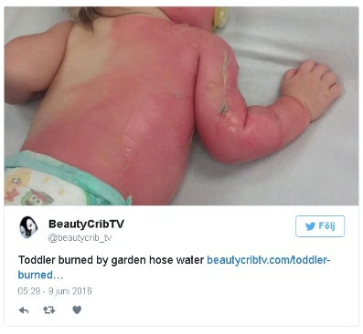 skadetbarn