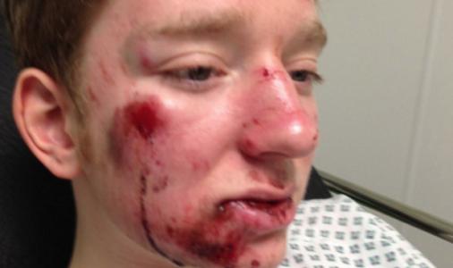 17-åringen ble påkjørt av en travel mor: Nektet å hjelpe ofret fordi hun hadde det «svært travelt»