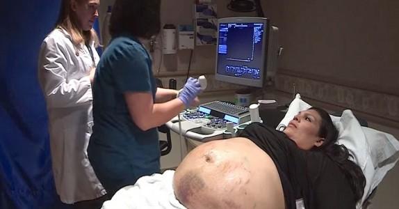 Mammas GIGANTISKE mage er dekt av blåmerker! Se den utrolige ultralyden som avslører hvorfor…