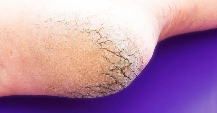 ekstremt tørr hud