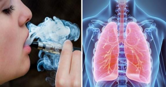 Leger advarer mot E-sigaretter fordi de er linket til en ny type sykdom kalt «popcorn-lunger».