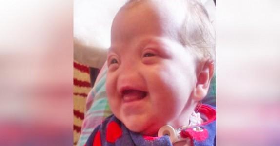 Legene anbefalte abort! Nå er den lille jenta som ble født uten nese mammas stolthet!