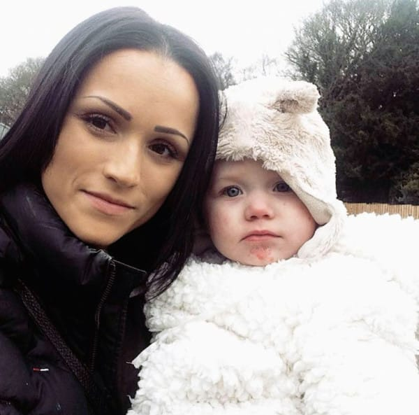 PIC FROM CATERS NEWS - (PICTURED: Danni Latham with her daughter Isla) - A young mum has been forced to defend her parenting skills after strangers presume her daughters severe skin condition is sun burn. Danni Latham, 21, from Alridge, West Mids, was devastated when midwives explained her new-born baby girl, Isla, had no skin on her hands or feet. Isla was diagnosed at eight weeks old with Epidermolysis bullosa (EB) - a rare skin condition that leaves blisters all over the body. But since her daughters birth in 2014, Danni has found herself being verbally attacked by viscous strangers who believe her skin condition in fact sun burn. SEE CATERS COPY.