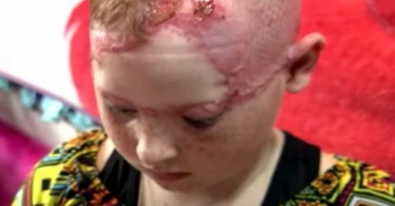 Den 11 år gamle jentas skalp blir brutalt revet av, mens hennes mor er nødt til å se på!
