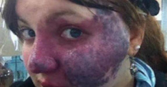 25-åringen med fødselsmerke i ansiktet står i kø. Det ekspeditøren sier til henne var det SISTE hun forventet!