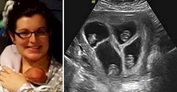 Den gravide kvinnen venter firlinger: Den andre undersøkelsen avslører en UTROLIG detalj!