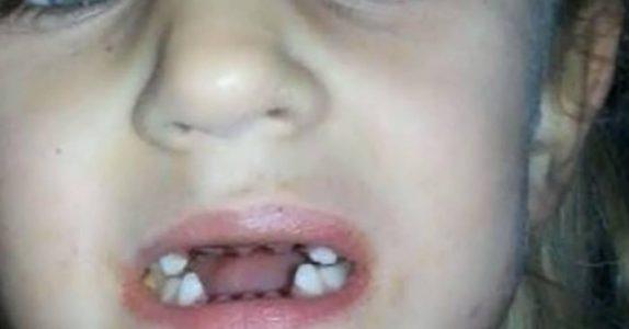 Denne moren smugfilmer hvordan tannlegen behandler sønnens tenner. Så oppdager hun noe FORFERDELIG!