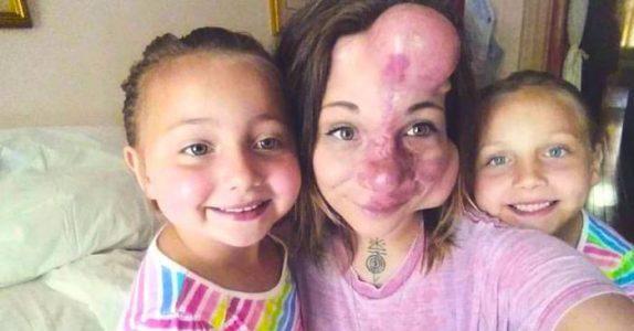 Ansiktet hennes er hovent der legene satte inn ballonger. Men noen år senere ser hun HELT annerledes ut!