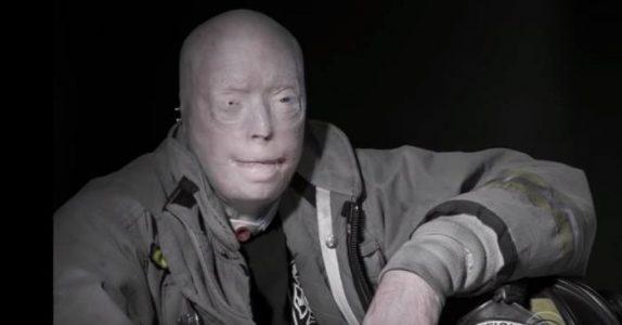 Han betalte 950 000 euro for en 26-timers operasjon. Se hvordan ansiktet hans ser ut ETTERPÅ!