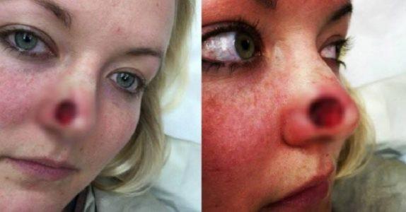 Hun fikk et stort hull på siden av nesen! Nå advarer hun alle mot denne populære uvanen!