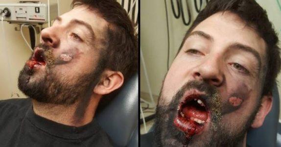 Far mister 7 tenner, etter at en e-sigarett EKSPLODERTE i munnen hans!