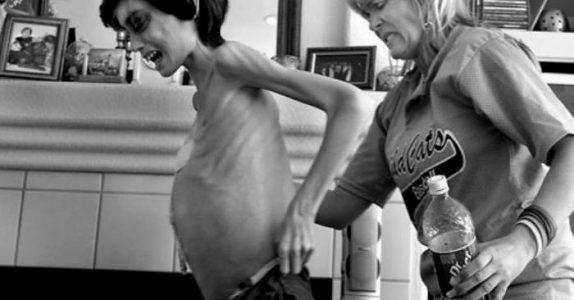Moren holder sin avmagrede sønn i armene en siste gang. Da er det på tide å si farvel.