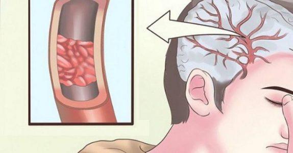 13 tegn på at kroppen din umiddelbart trenger mer magnesium!