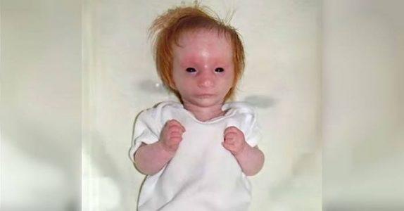 Den nyfødte babyen ser ut som en porselensdukke. 5 år har gått, og legene har ALDRI sett en en jente som henne!
