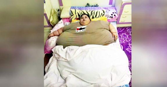 Verdens tyngste kvinne kan ikke forlate sengen. Men se hva som skjer når legene tar affære!