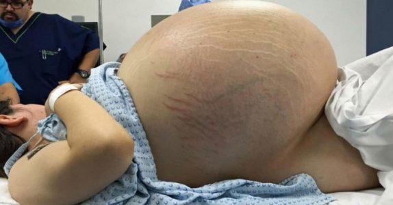 Ingen kan forklare kvinnens enorme mage. Men det legene ser på røntgenbildene sjokkerer alle!