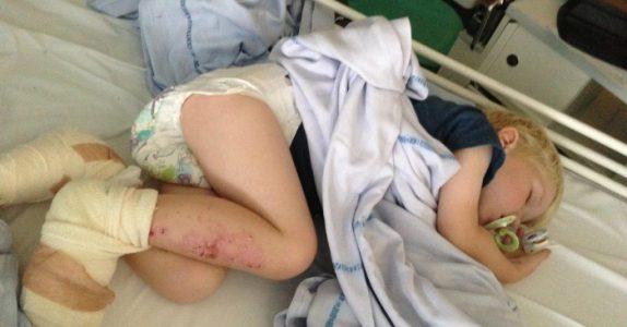 3 år gamle Jakob mistet nesten tærne sine etter en tur på stranden. Nå advarer moren ALLE!