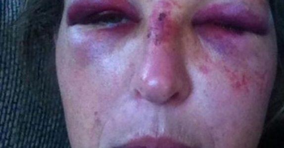 Da kvinnen luktet på mannen, ringte alle alarmbjellene. 3 minutter senere fikk hun ansiktet sitt knust!