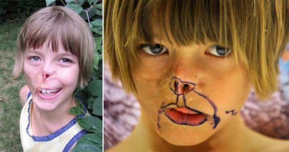 Halve ansiktet hennes ble spist opp når hun bare var 3 mnd. gammel. 11 år senere forandres ALT!