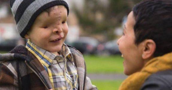 Gutten uten ansikt forlot landet sitt i 2 år. Når han kom tilbake, kunne INGEN tro sine egne øyne!