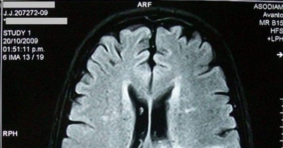 Forskere: Å være glemsk er et tegn på at du er usedvanlig intelligent!