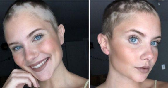 17-åringen mistet alt håret før skolefotograferingen. Da gjorde mammaen DETTE for henne!