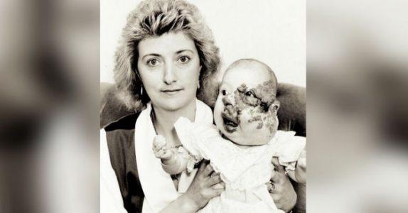 Jenta ble født med en svulst i ansiktet. Se hvordan hun ser ut 26 år senere – på bryllupsdagen!