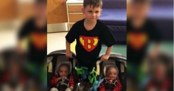 Tvillingene ble født med en uvanlig sykdom. Da sier storebroren noe som får mammaen til å måpe!