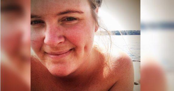 Kvinne med pose på magen blir sjikanert når hun bader. Blogger mener at stranda ikke er for alle!
