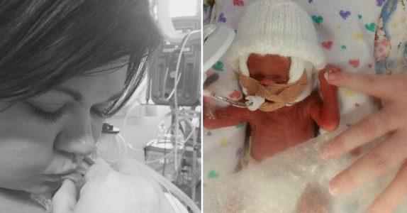 Tvillingene veier bare 700 gram ved fødselen. Da tar legene fram bobleplasten og gjør alt de kan!