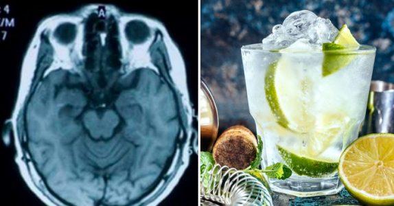 Ny forskning viser: Personer som drikker Gin & Tonic har større hjerne enn andre!