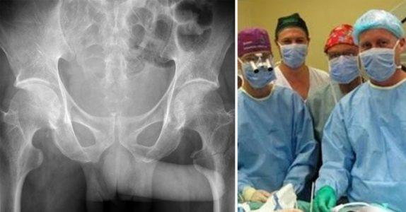 Tenåringen hastes til sykehuset. Der får legene sitt livs største sjokk når de ser røntgenbildene!