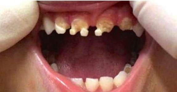 Tannlegen ser inn i treåringens munn. Så spør han moren om han har drukket DETTE…