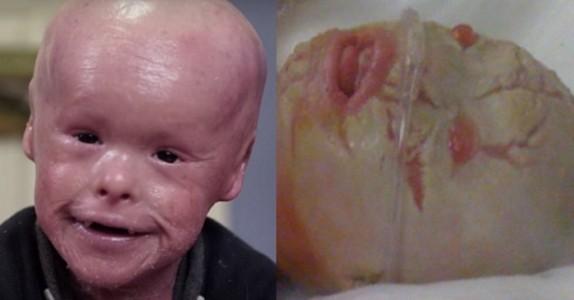 Gutten fikk en dødelig sykdom allerede ved fødselen. Nå rører 6-åringens kamp mot sin ekstreme hudsykdom hele verden!