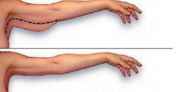Dette er den beste måten å få bort armfettet på, med bare noen enkle hjemmeøvelser!
