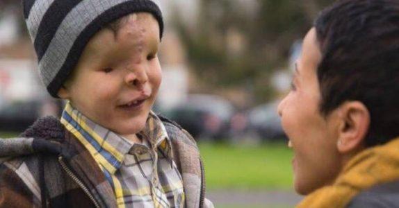Gutten uten ansikt forlater landet sitt i 2 år. Når han kommer tilbake, kan familien knapt tro sine øyne!