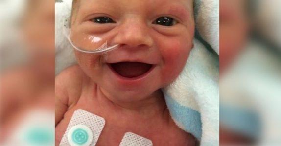 Denne babyen er født for tidlig. Men nå gir dette smilet håp til de bekymrede foreldrene!