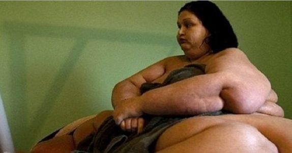 Husker du kvinnen som veide 450 kg? Du vil bli sjokkert over hvordan hun ser ut i dag!