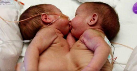 Moren føder siamesiske tvillinger. 18 år senere er de ikke til å kjenne igjen!