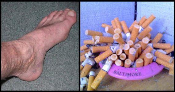 Slik forandres kroppen når du slutter å røyke: Her er 10 ting som vil får deg til å slutte I DAG!