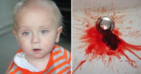 Ingen skjønte hvorfor den 1 år gamle gutten hostet blod. Da måtte legen følge magefølelsen sin!