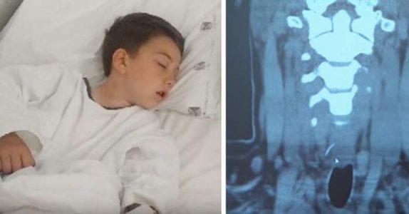 Gutten spiste hamburger da han fikk store smerter i magen. På legevakten viser røntgenbildene det UTENKELIGE!