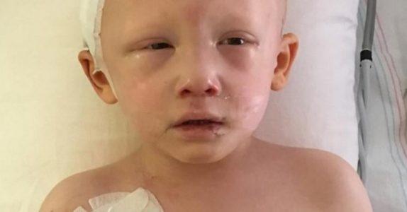 En siste gang åpner 4-åringen øynene, og hvisker 4 ord. Da klarer ingen å holde tårene tilbake!