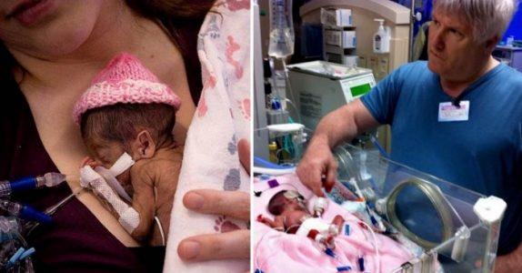 Ingen trodde den lille jenta på 500 gram ville overleve. Men så sier pappaen 5 ord som forandrer ALT!