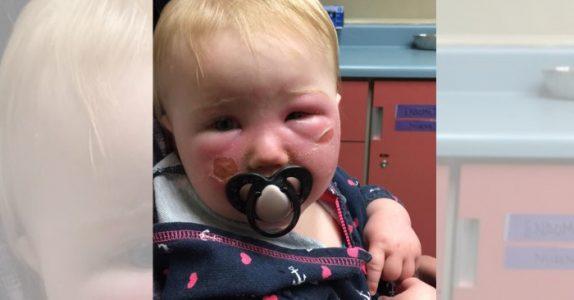 Babyen fikk brannskader av en helt vanlig krem. Nå advarer moren mot den dødelige salven!