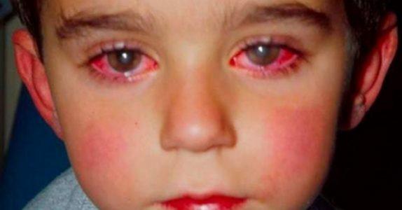 Denne lille gutten mistet 75 prosent av synet. Fordi han lekte med DETTE populære leketøyet!